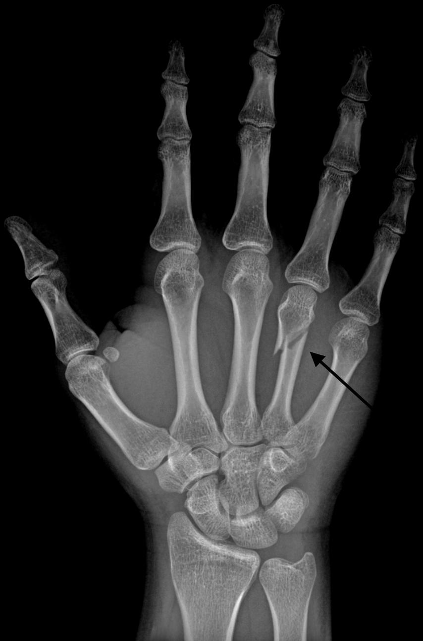 A broken finger in a hand.